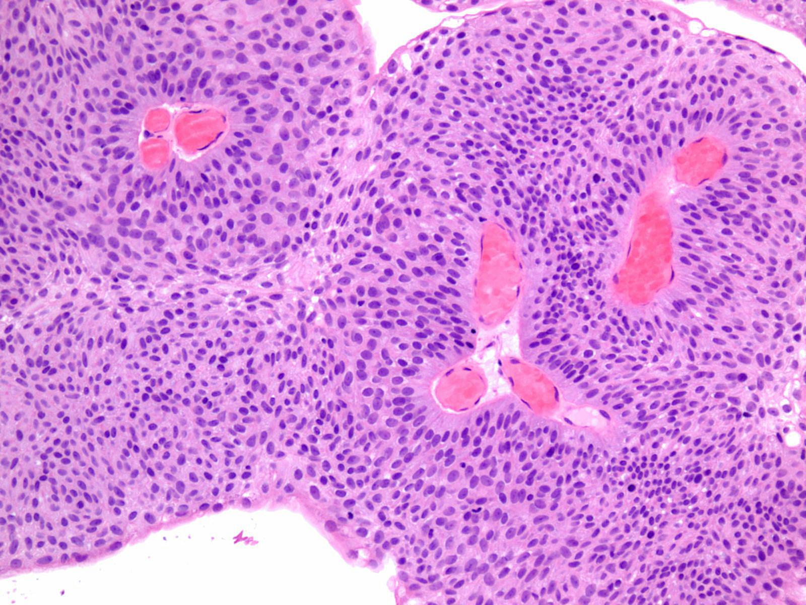 urothelialis papilloma leczenie