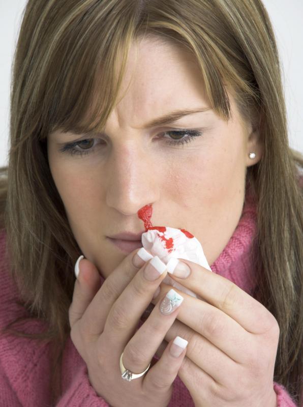 nasal papilloma bleeding