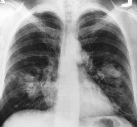 cancer pulmonar metastaze creier