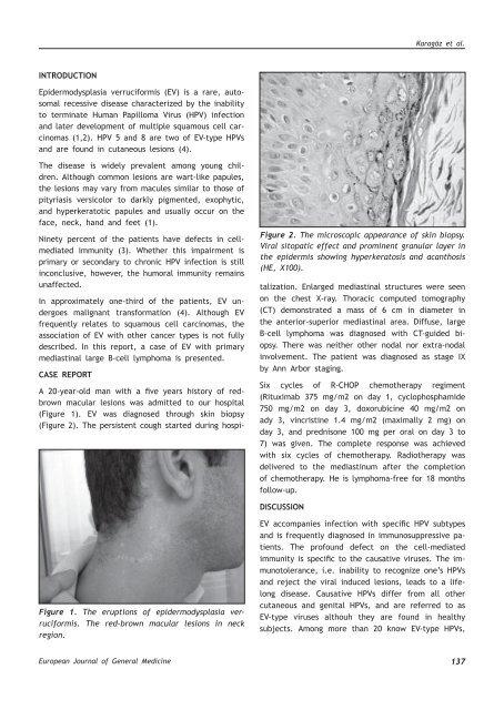 5.Prezentare HPV- Finala