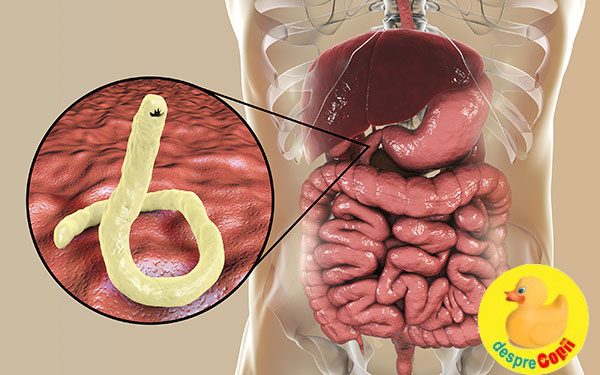 simptome paraziti copii