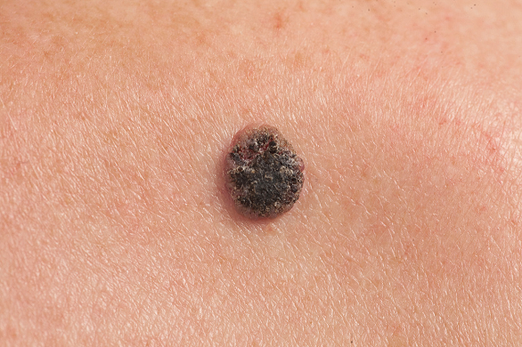 can hpv virus cause bleeding papilloma urothelial neoplasm