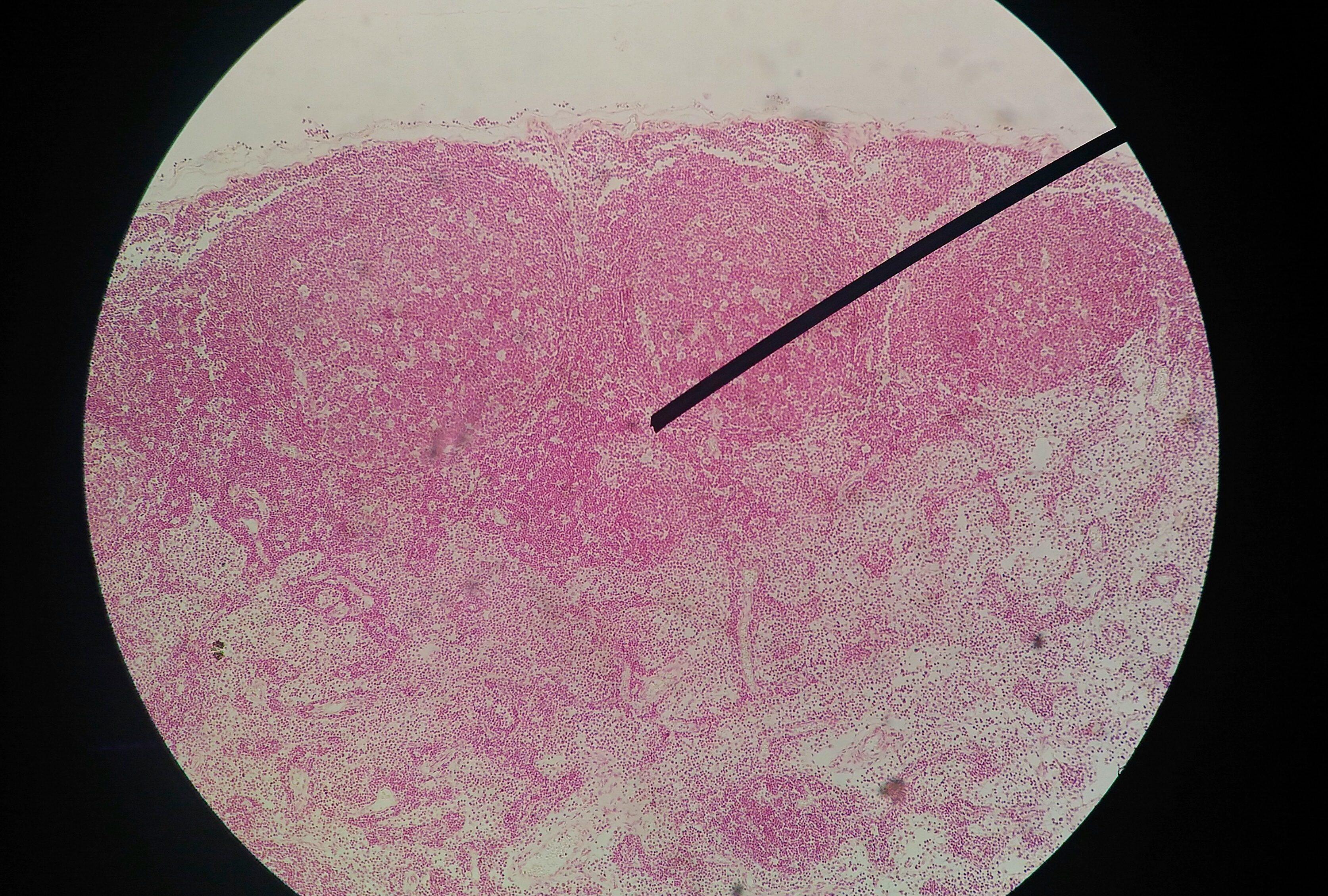 papilloma test sintomi papilloma virus in human