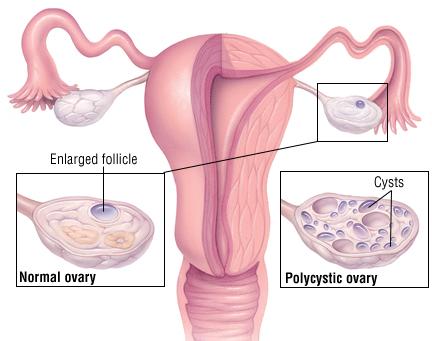 ovarian cancer or pcos