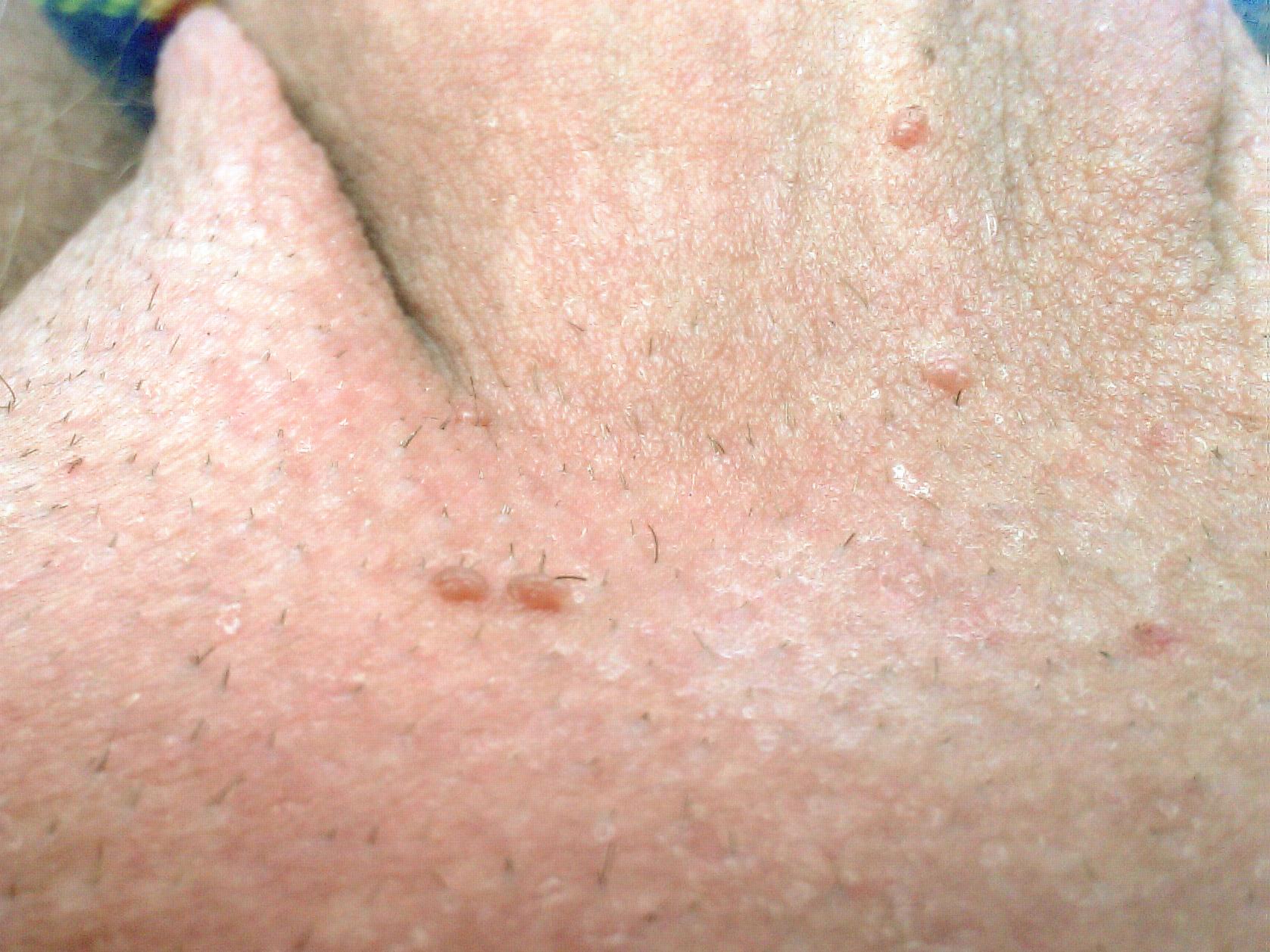 condylomata acuminata bilder hpv virus with saliva