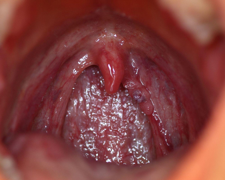 papiloma humano virus o bacteria