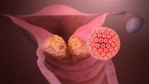 infection papillomavirus femme