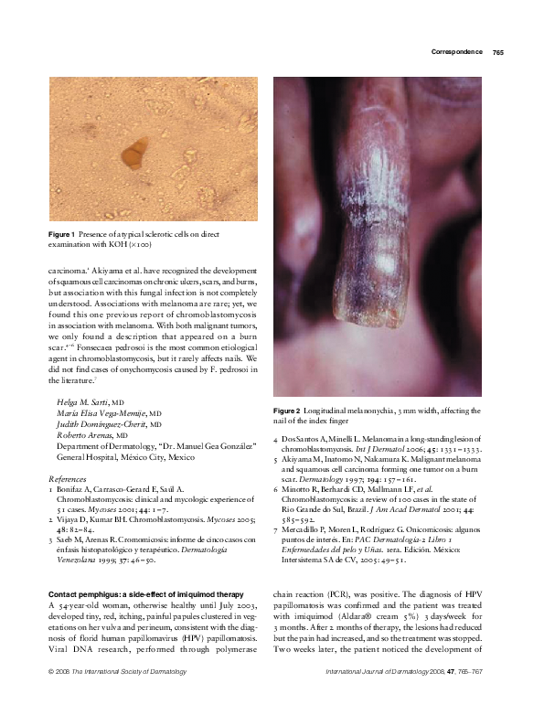 Cytopsor comentarii în psoriazis