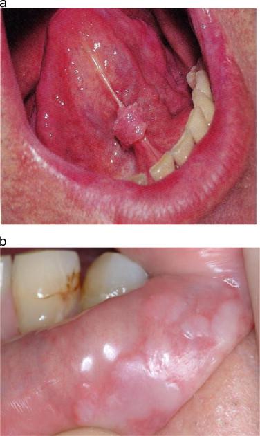 confluent and reticulated papillomatosis face el virus del papiloma se transmite al feto