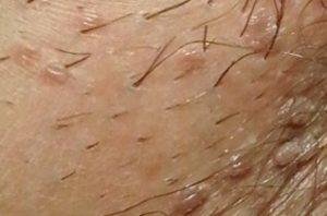 hpv virus kondilomi