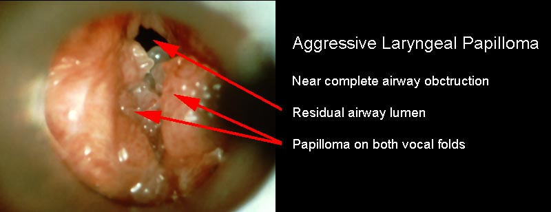 laryngeal papillomatosis onset duct papilloma microdochectomy