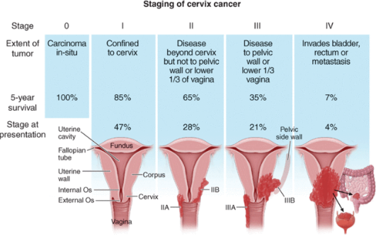 toxin c endometrial cancer survival rate