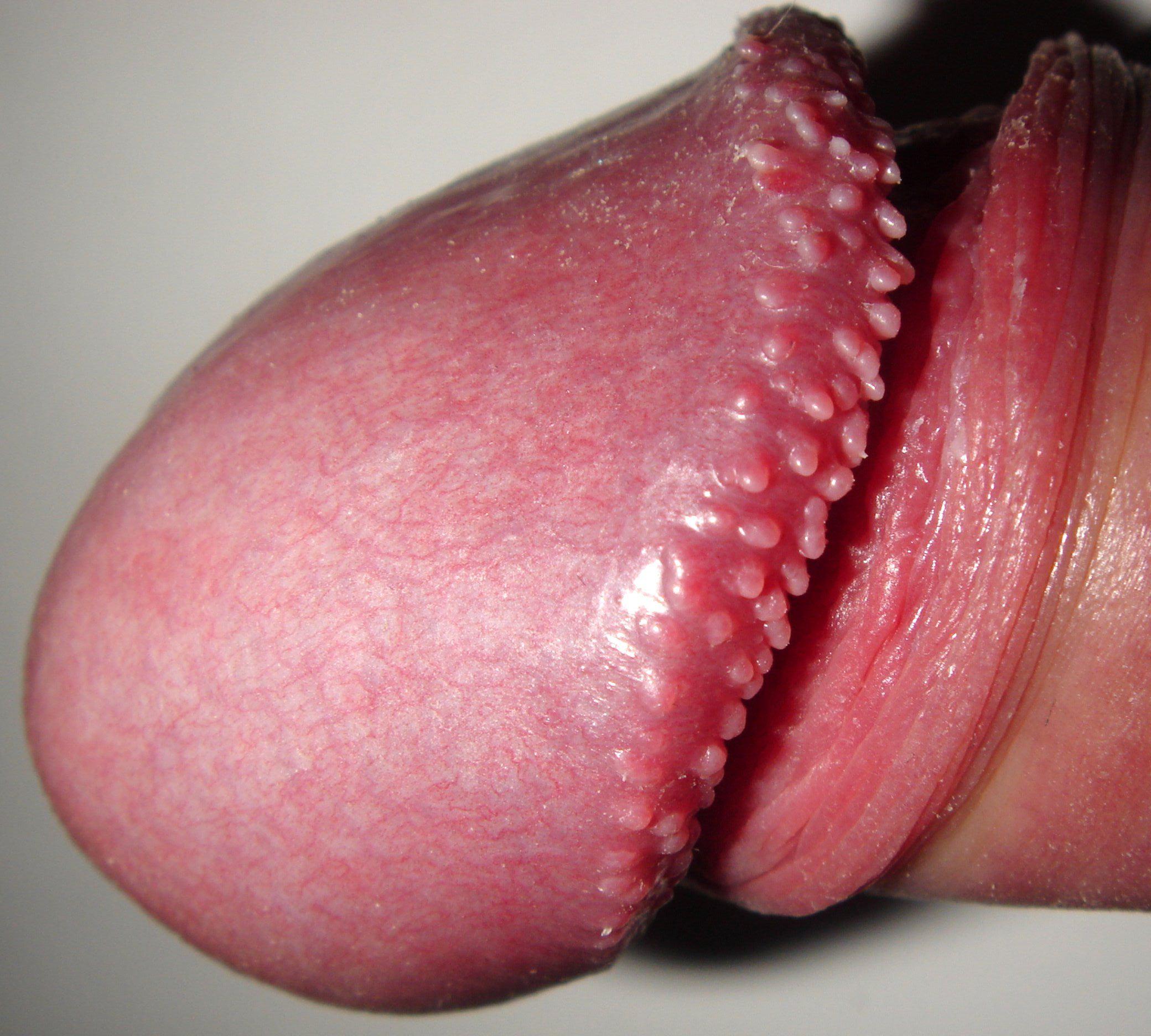 Varicele cicatrice uterine