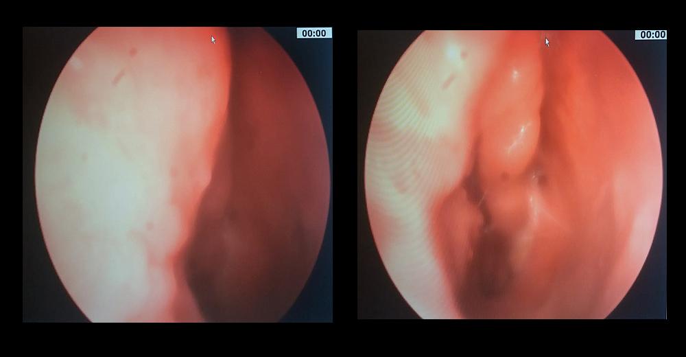 papilloma fossa nasale