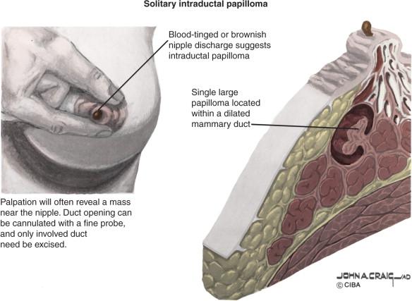 do intraductal papillomas go away