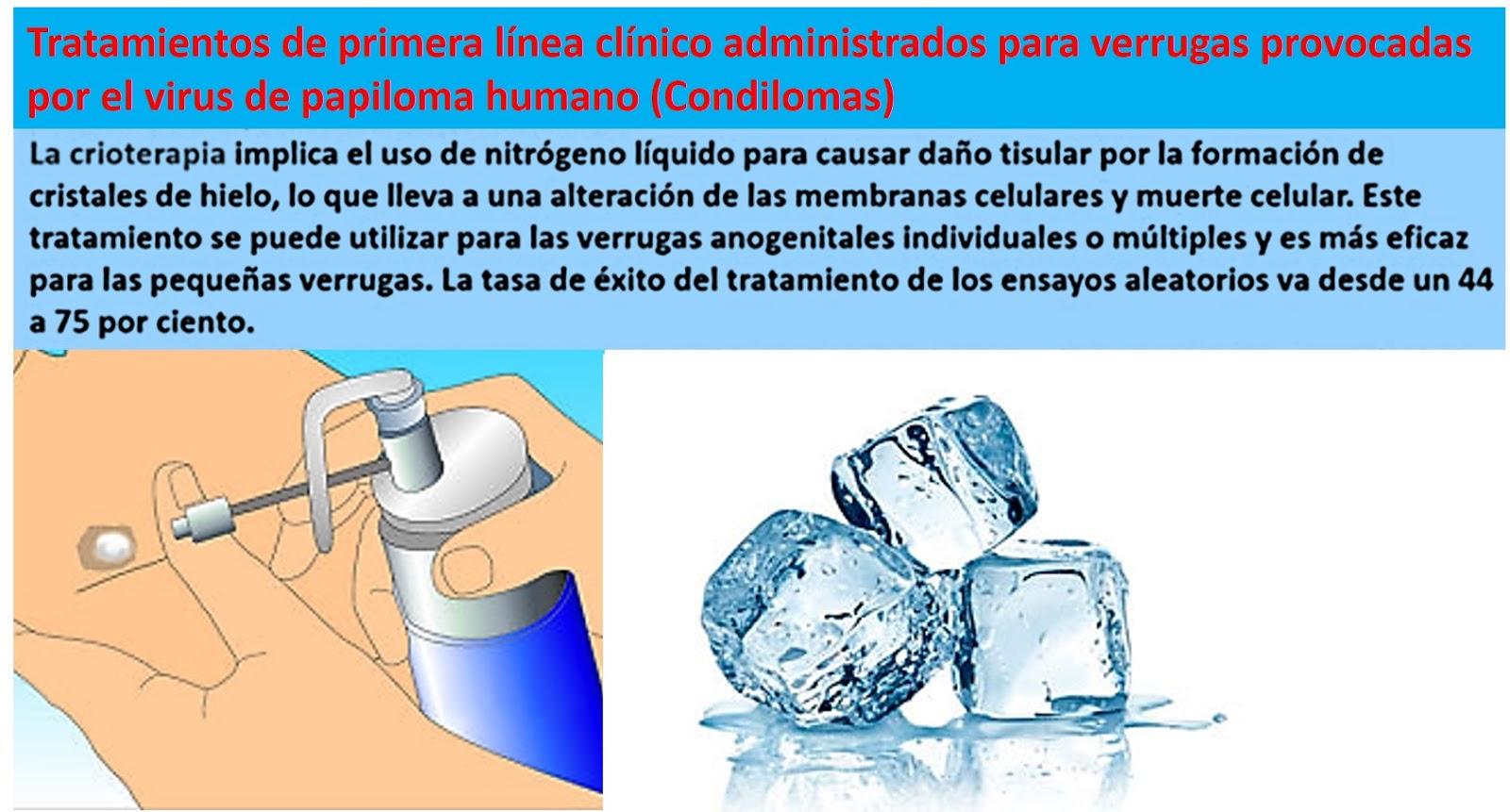 papiloma humano tratamiento congelacion