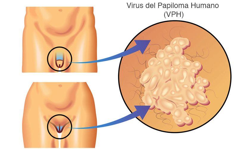 virus del papiloma una vestibular papillomatosis thrush
