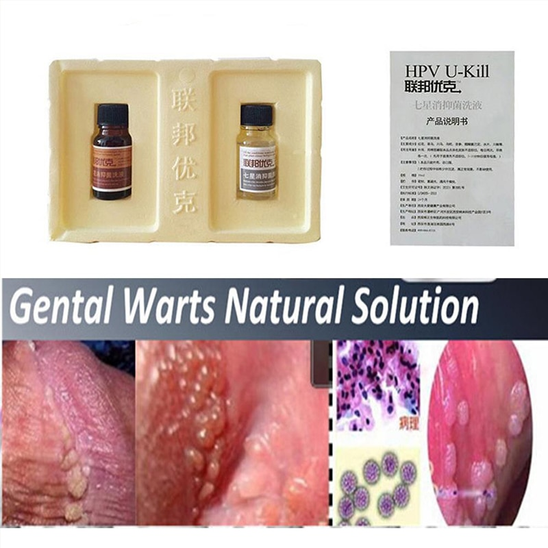 hpv wart removal papilloma virus quali sono i sintomi