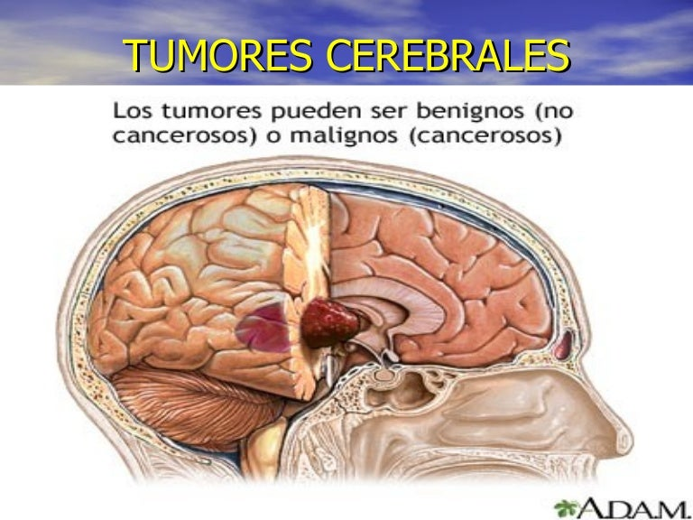cancer cerebral etapa 4