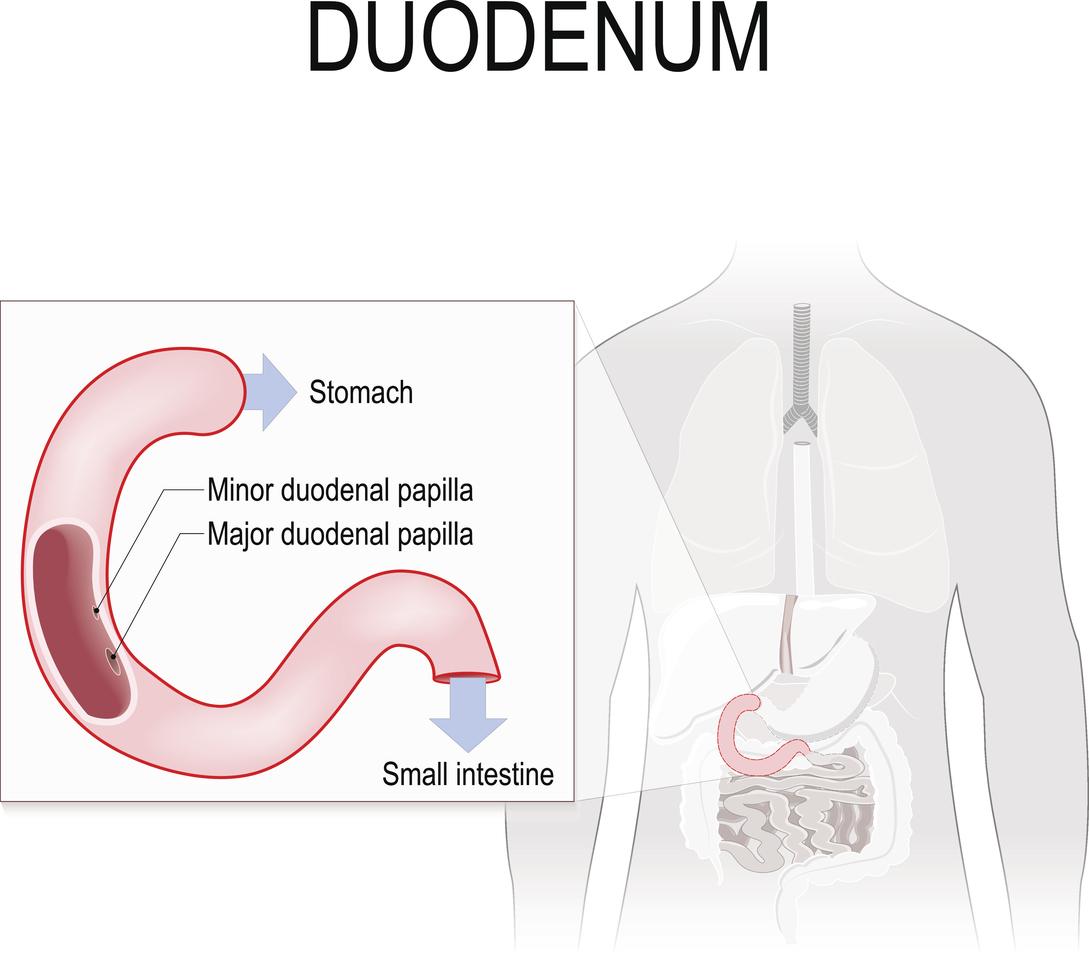 cancerul duodenal simptome gastric cancer omeprazole