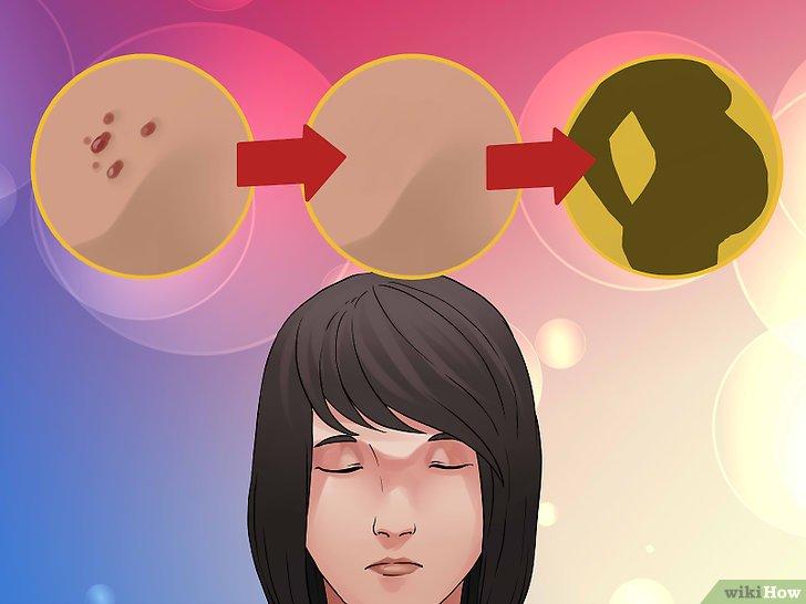 ciuperci bebe 1 an vierme