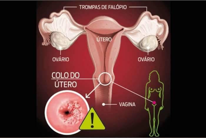 hpv cancer no utero