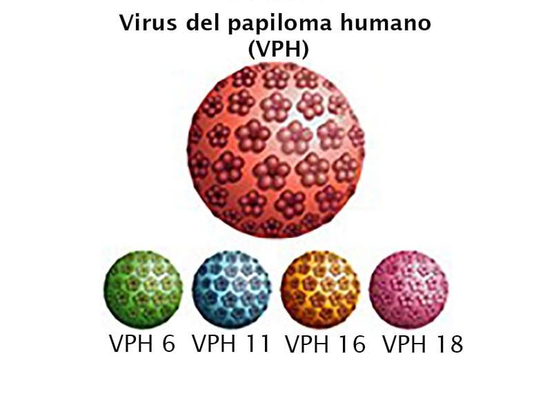 virus papiloma humano 16 y 18