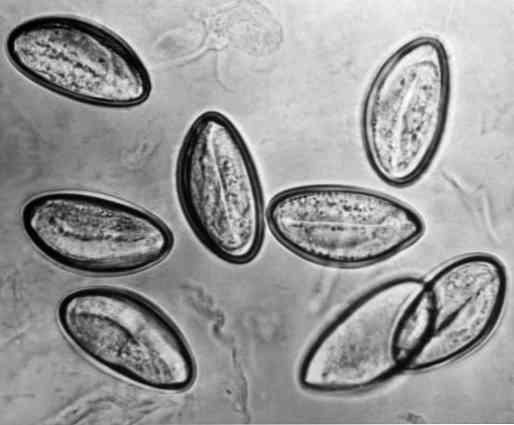 warts associated with papillomavirus papillary thyroid cancer ncbi