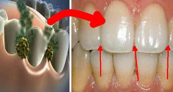 bacterii din gura sirop pt viermisori