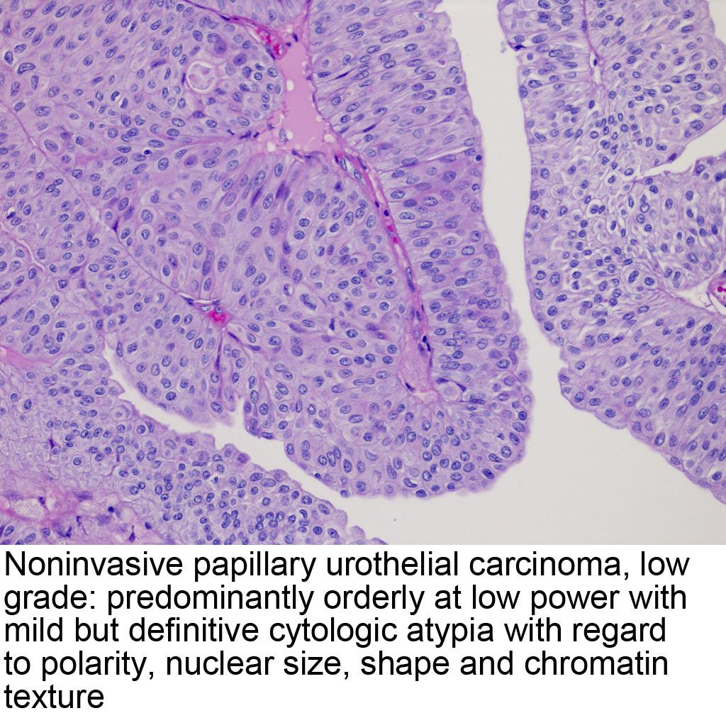 Imaging in Urology: Mitchell E. Tublin · | Books Express