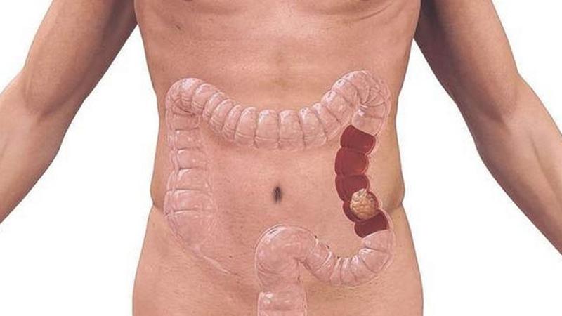 simptome cancer la colon