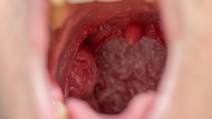 papilloma mouth cause virus de papiloma humano a