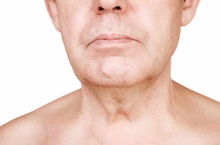 human papillomavirus and malignancy