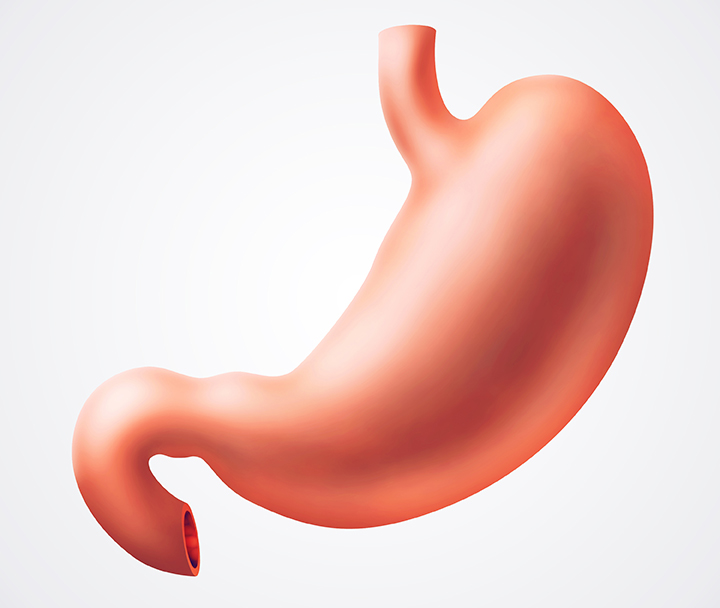 cancer gastric tipuri
