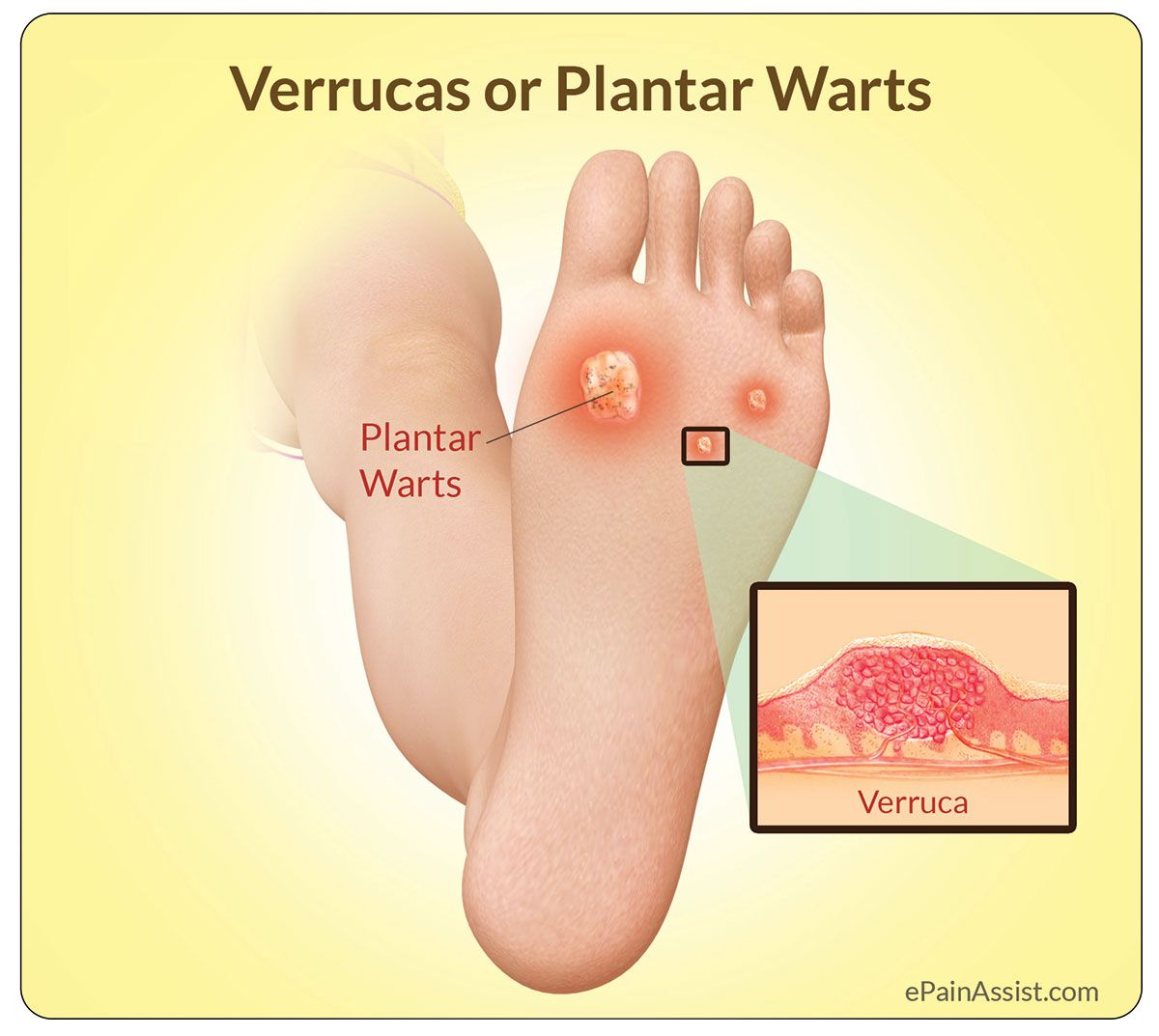 warts treatment homeopathy medicine vestibular papillomatosis icd 10