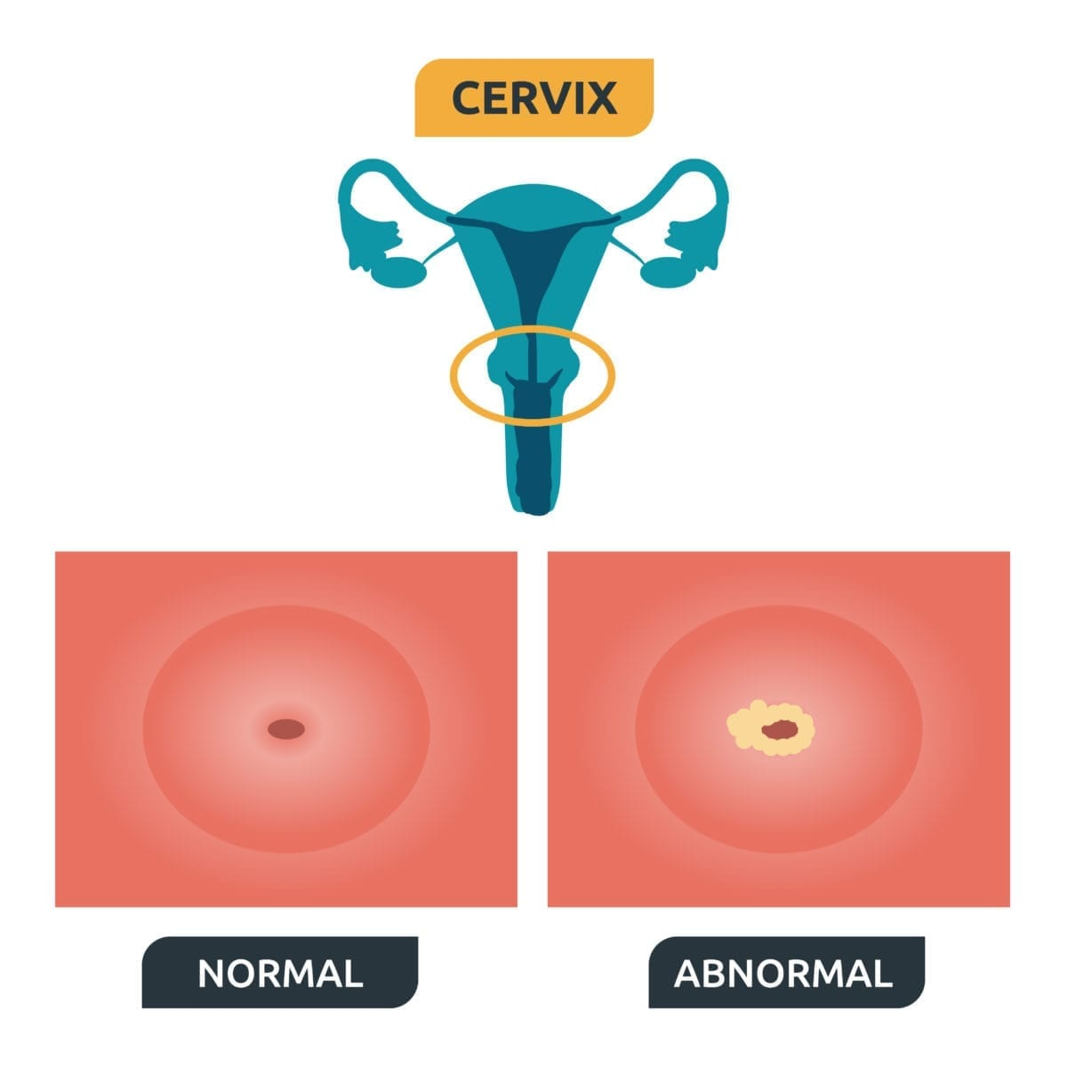 hpv that causes abnormal cells hpv vacina utero