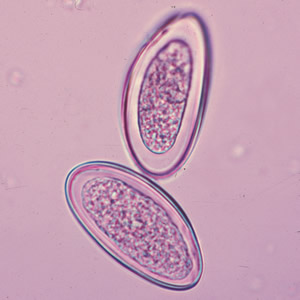 enterobius vermicularis who