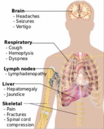 cancerul metastatic