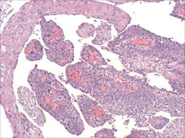 gliste u crevima simptomi hpv 6 11 condyloma