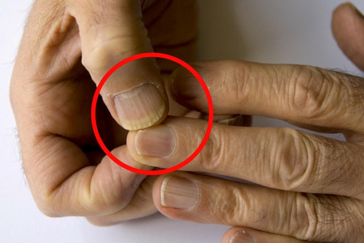 Unghiile cu gel pot duce la apariția cancerului. Iată se spun specialiștii – leacurinaturiste.ro