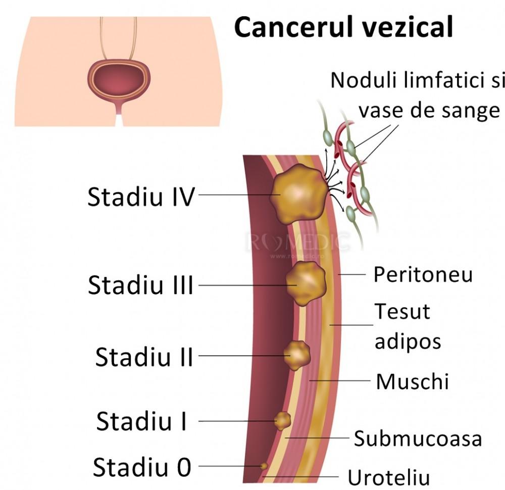 cancerul vezical genetic cancer brca