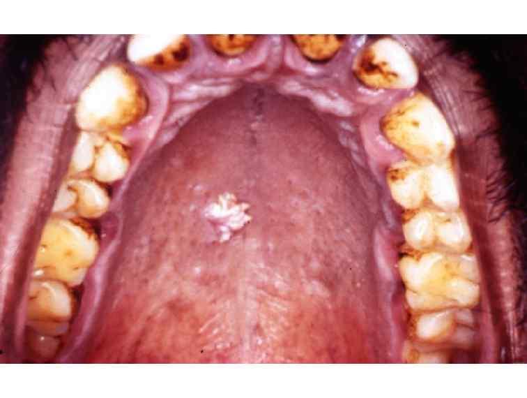 Cancerul glandelor salivare