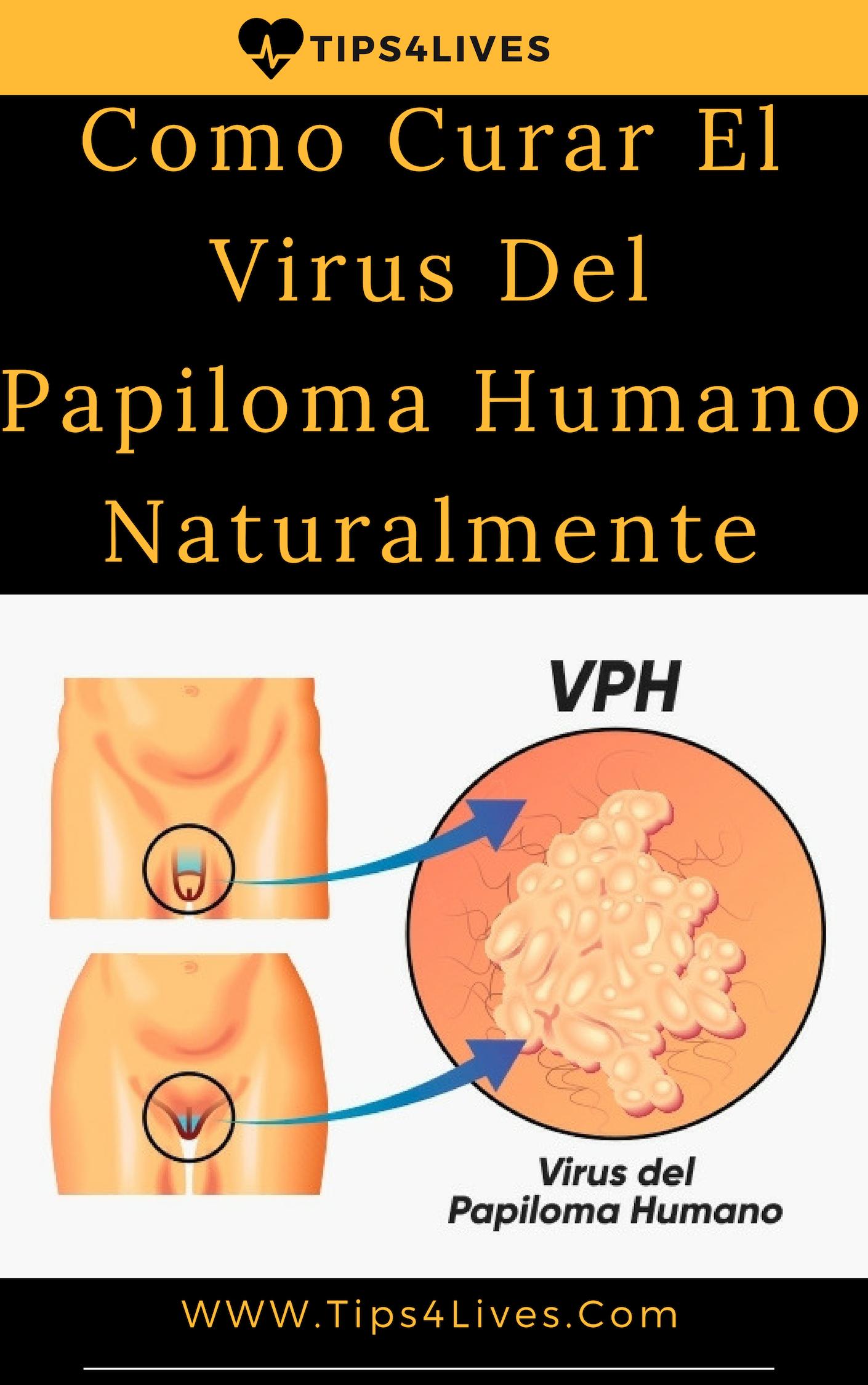 virus del papiloma humano tratamiento casero