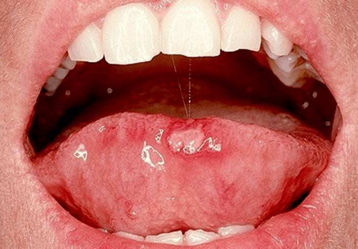 Llagas en la boca por papiloma - Tinctura din papiloame