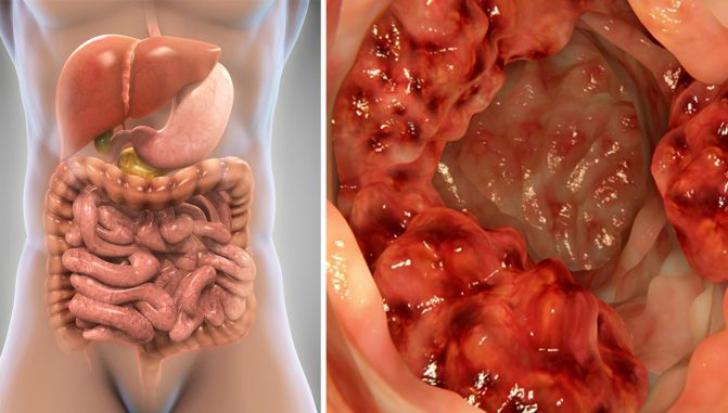 cancer de colon simptome sunt hpv warzen hand