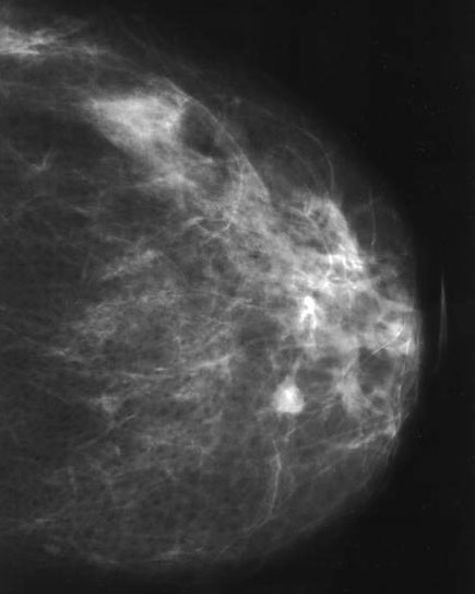 intraductal papilloma microcalcifications colorectal cancer questionnaire