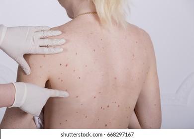 papillomas skin