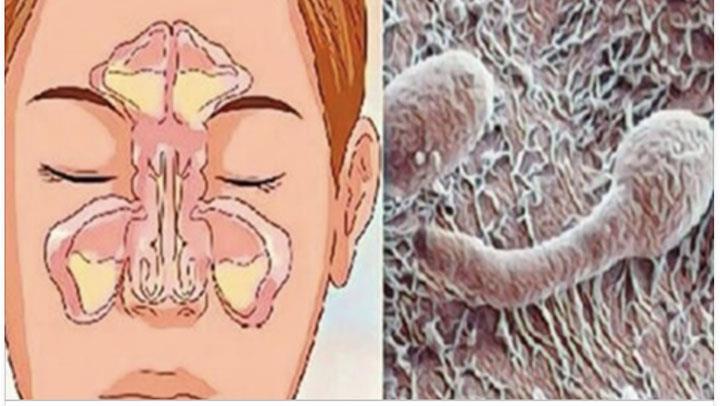 parazitoza cronica