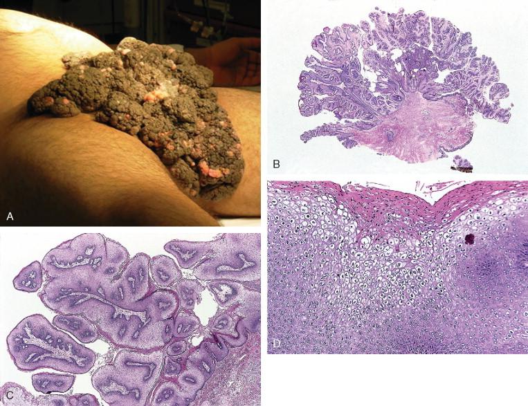 condyloma acuminata literature inverted papilloma and breast cancer
