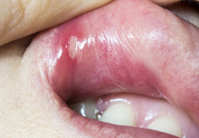can hpv cause lip cancer enterobiasis by pinworm